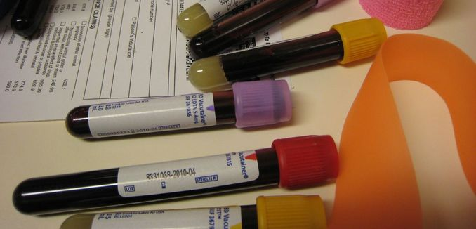 FeaturedImage_2016-02-18_Flickr_Blood_Tests_3572379176_65b161a417_o