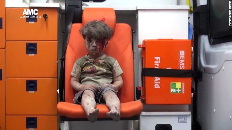 Omran Daqneesh survived a bombing in Aleppo. Photo: Aleppo Media Center